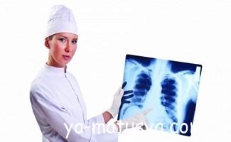 Чи безпечна флюорографія при вагітності?