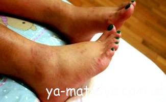 Набрякання ніг у вагітних жінок
