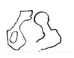Дисплазія ІІІ ст. - Вивих. Важка форма, при якій голівка стегнової кістки сильно зміщена і не збігається з вертлюжною западиною.