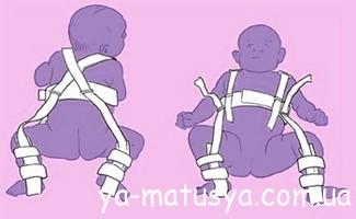 Дисплазія кульшового суглоба у дітей