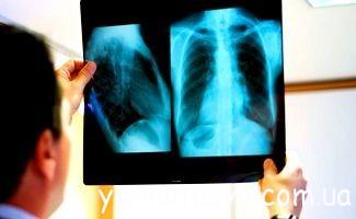 Туберкульоз під час вагітності