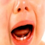 Як і коли ріжуться зубки у малюків