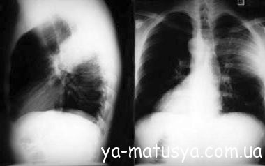 Запалення легенів і атипова пневмонія при вагітності