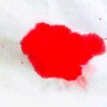Кровотеча під час вагітності: що робити?